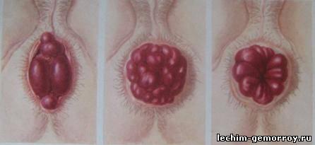 Анальный секс с геммороем